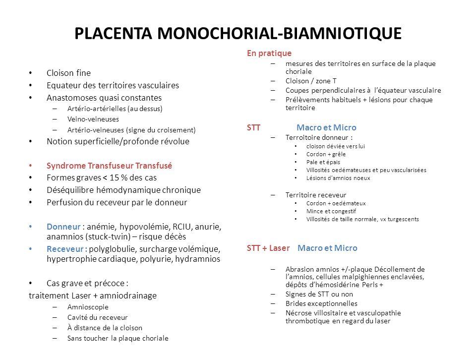 PLACENTA MONOCHORIAL-BIAMNIOTIQUE