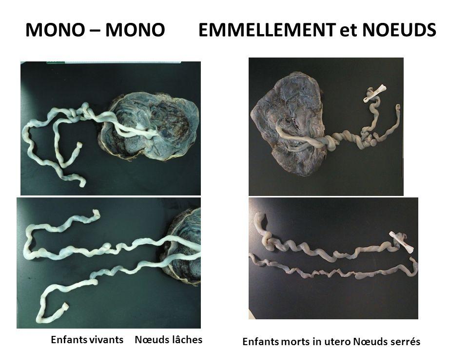 MONO – MONO EMMELLEMENT et NOEUDS