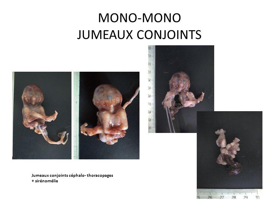 MONO-MONO JUMEAUX CONJOINTS