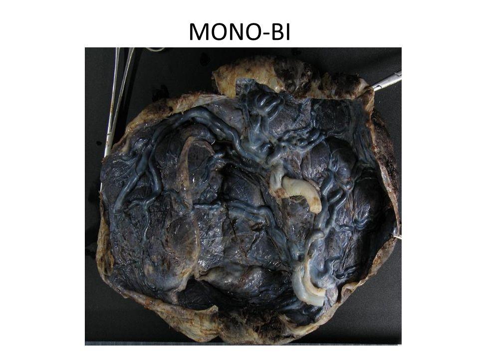 MONO-BI