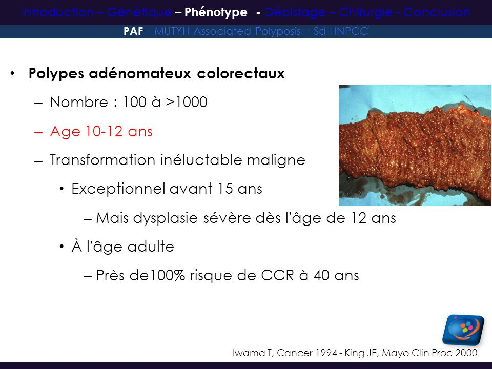 Polypes adénomateux colorectaux Nombre : 100 à >1000 Age 10-12 ans