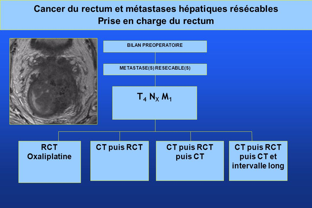METASTASE(S) RESECABLE(S) CT puis RCT puis CT et intervalle long