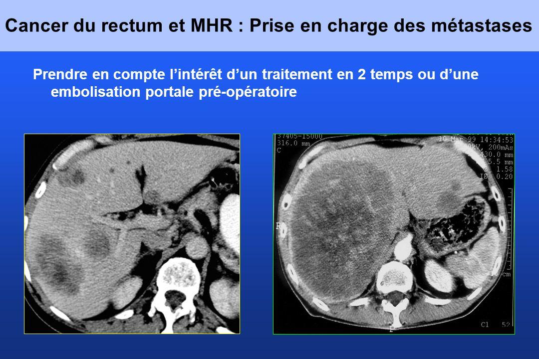 Cancer du rectum et MHR : Prise en charge des métastases