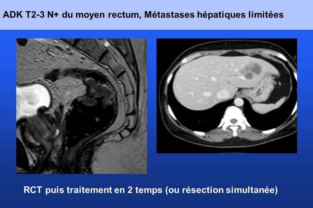 ADK T2-3 N+ du moyen rectum, Métastases hépatiques limitées