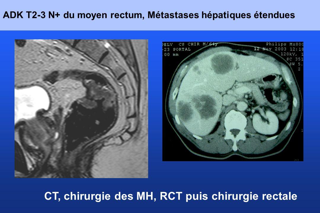 ADK T2-3 N+ du moyen rectum, Métastases hépatiques étendues