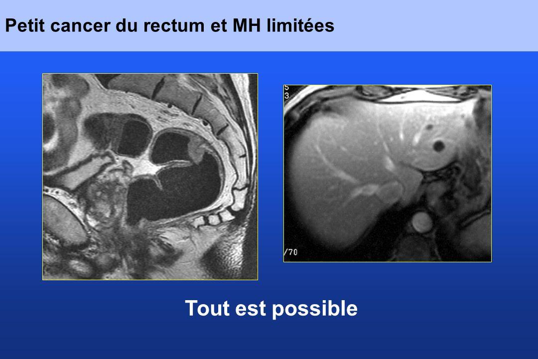 Petit cancer du rectum et MH limitées