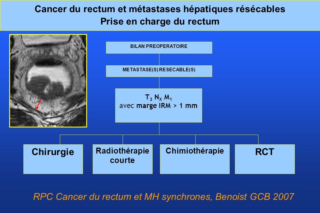 METASTASE(S) RESECABLE(S)