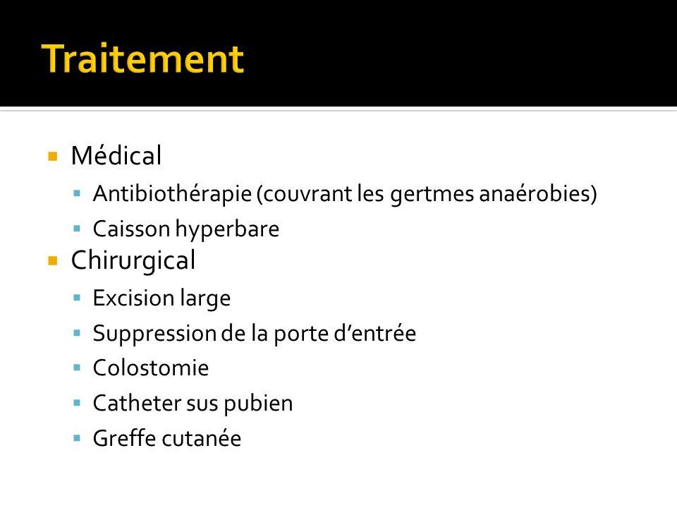 Traitement Médical Chirurgical