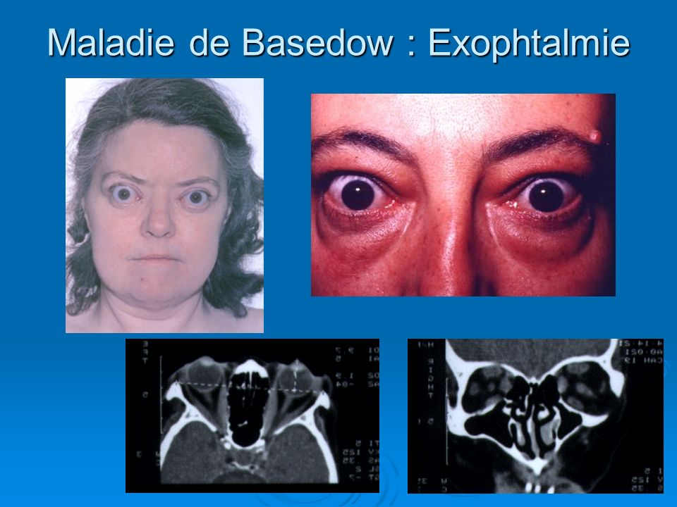 Maladie de Basedow : Exophtalmie