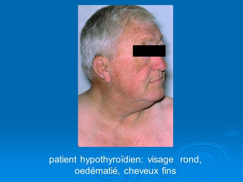 patient hypothyroïdien: visage rond, oedématié, cheveux fins