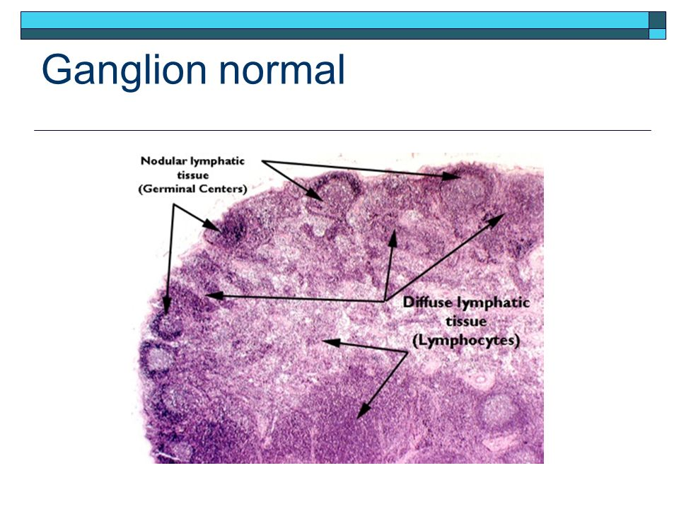 Ganglion normal