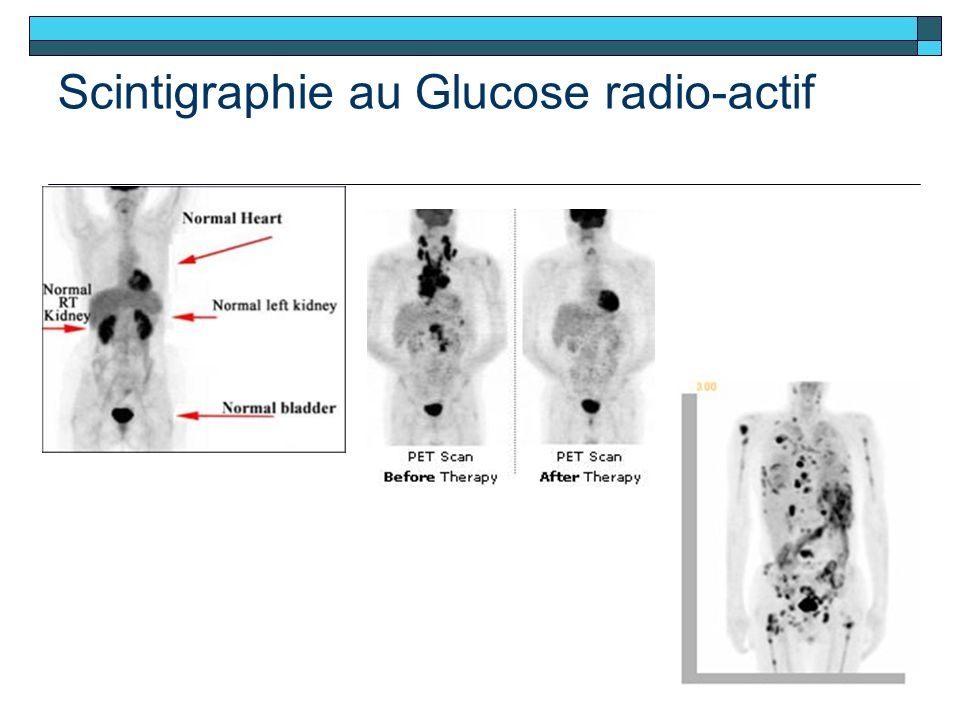 Scintigraphie au Glucose radio-actif