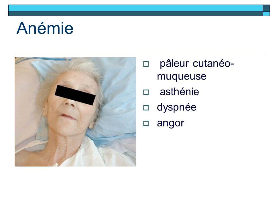 Anémie pâleur cutanéo- muqueuse asthénie dyspnée angor
