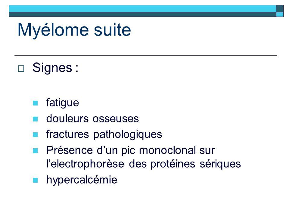 Myélome suite Signes : fatigue douleurs osseuses