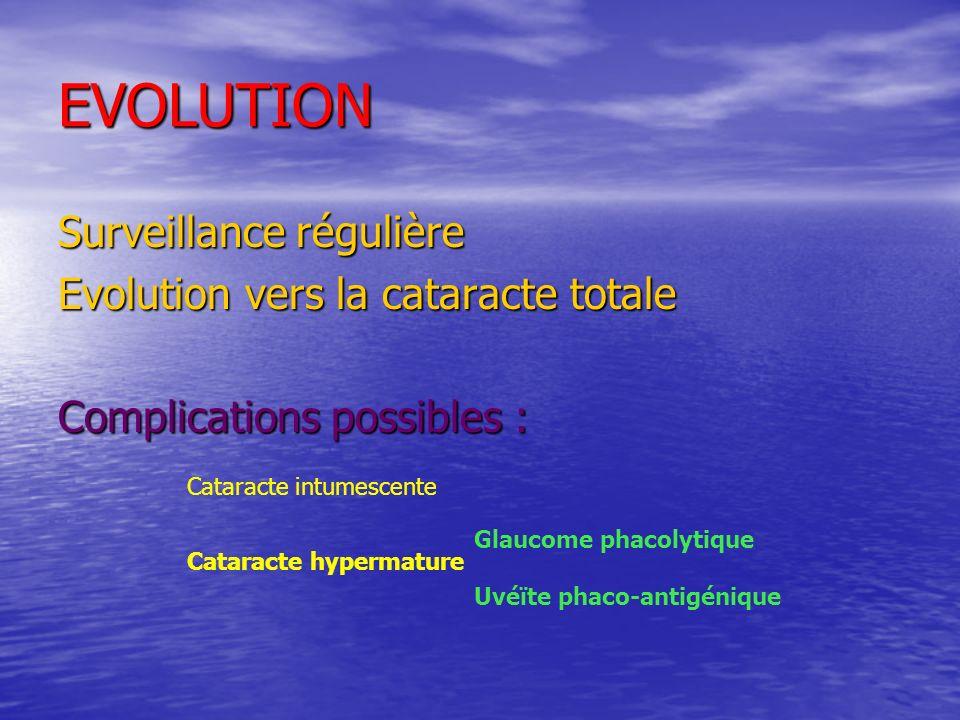 EVOLUTION Surveillance régulière Evolution vers la cataracte totale