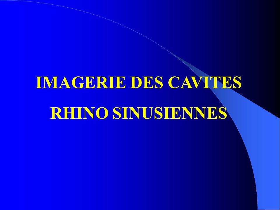 IMAGERIE DES CAVITES RHINO SINUSIENNES