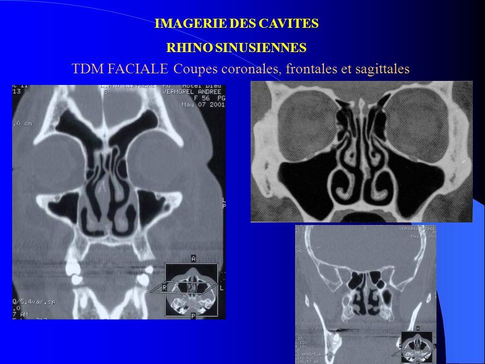 TDM FACIALE Coupes coronales, frontales et sagittales