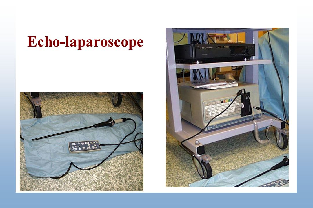 Echo-laparoscope Echo-laparoscope