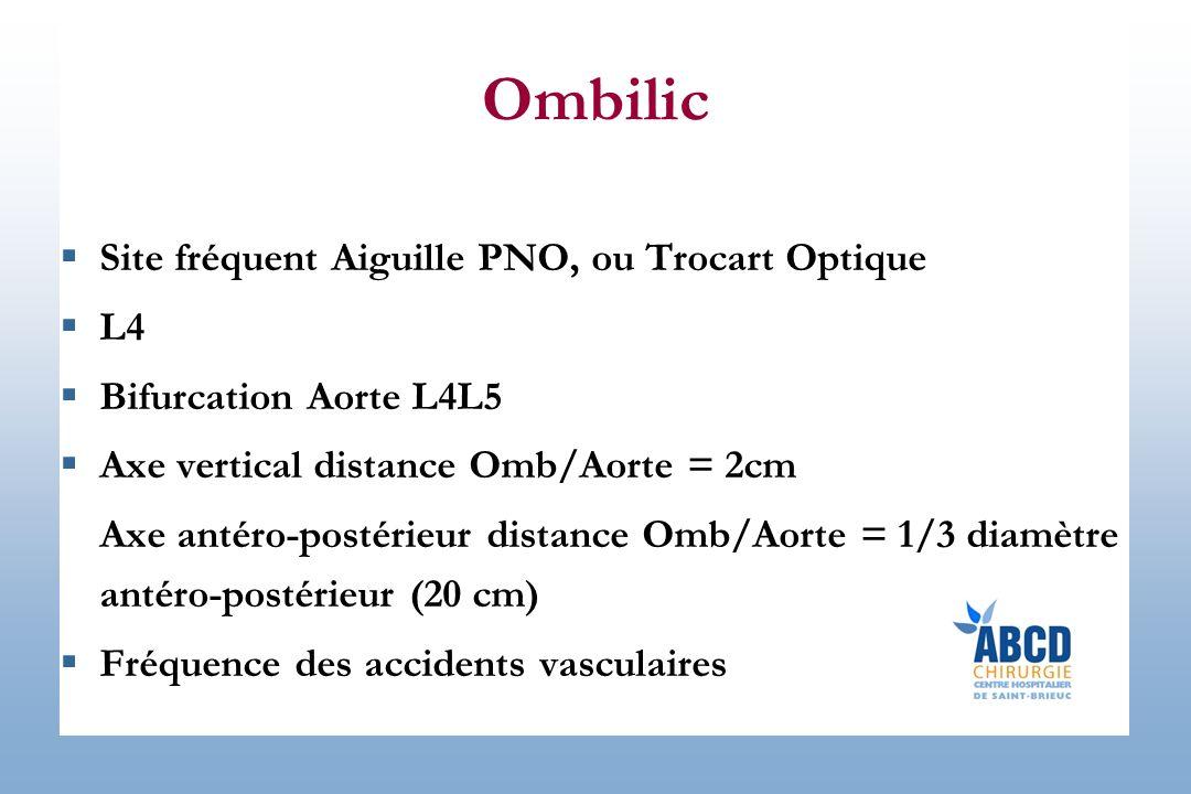 Ombilic Site fréquent Aiguille PNO, ou Trocart Optique L4