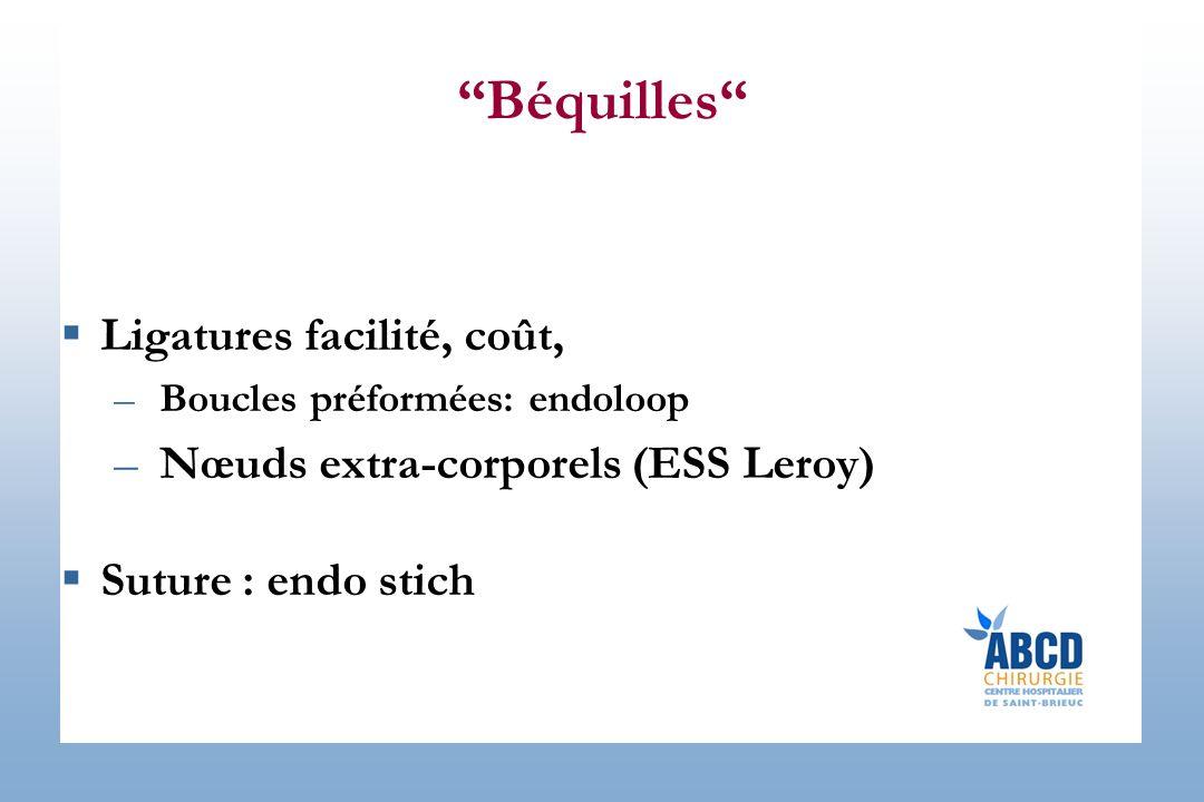 Béquilles Ligatures facilité, coût,