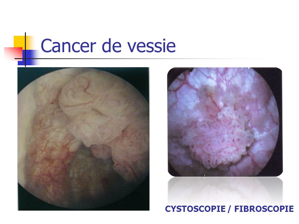 Cancer de vessie CYSTOSCOPIE / FIBROSCOPIE