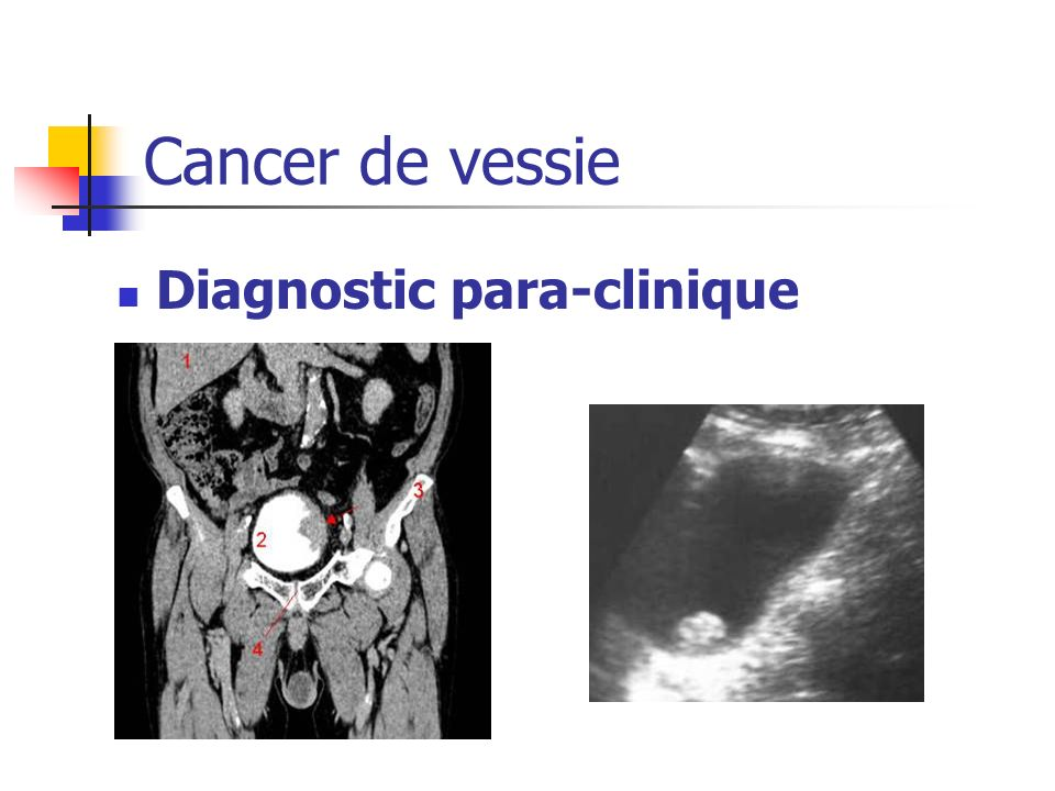 Cancer de vessie Diagnostic para-clinique