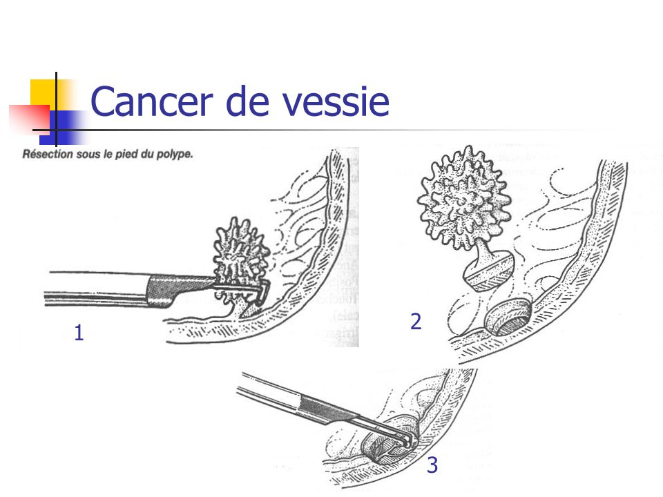 Cancer de vessie 2 1 3