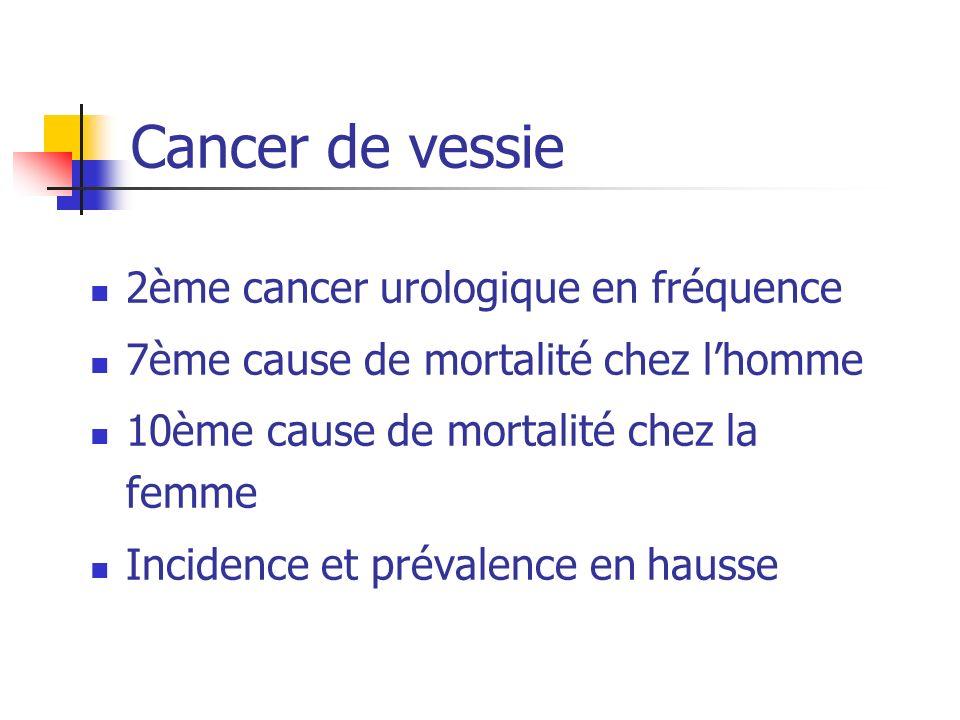 Cancer de vessie 2ème cancer urologique en fréquence