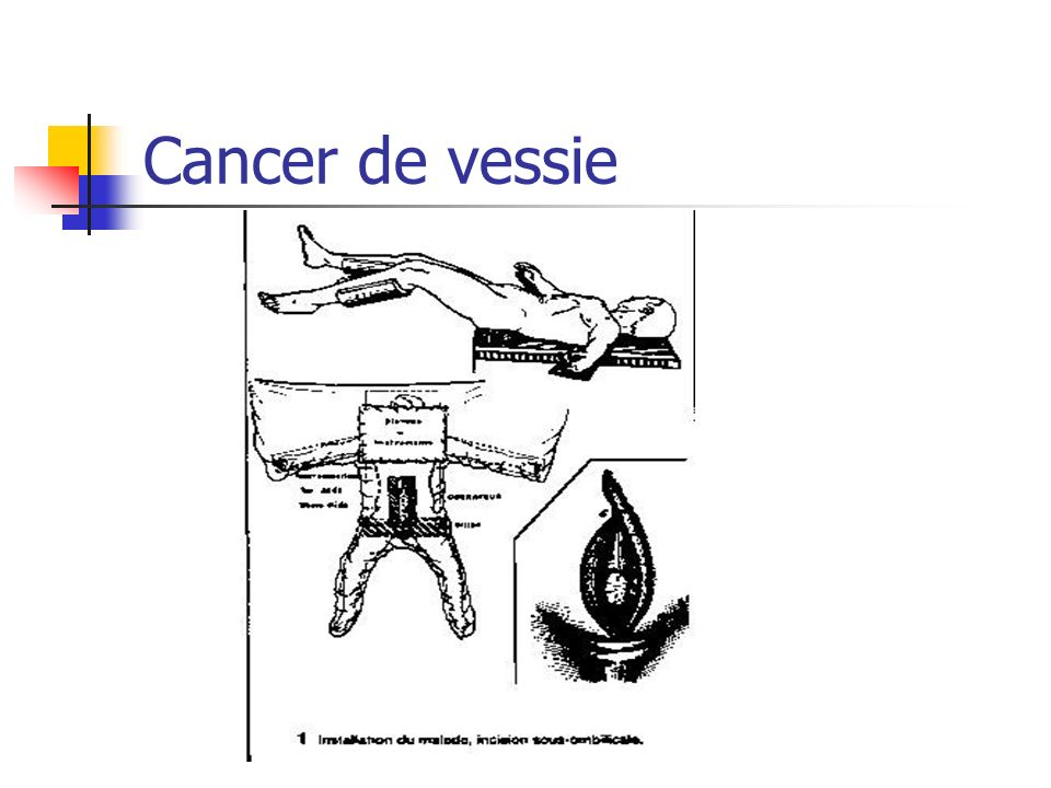 Cancer de vessie