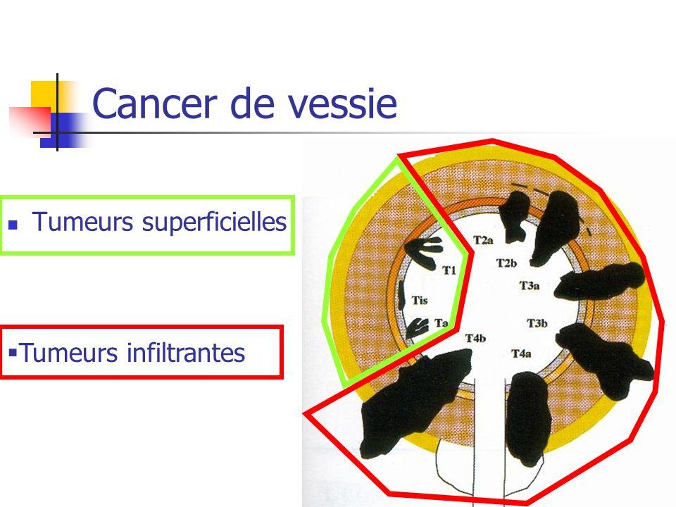 Cancer de vessie Tumeurs superficielles Tumeurs infiltrantes
