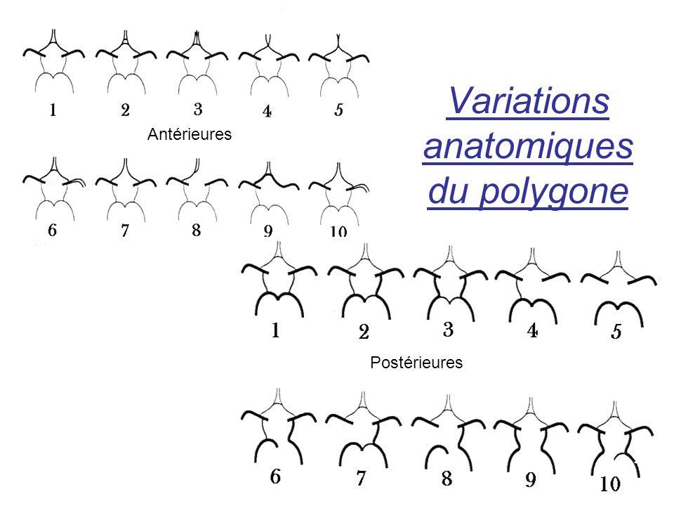 Variations anatomiques du polygone