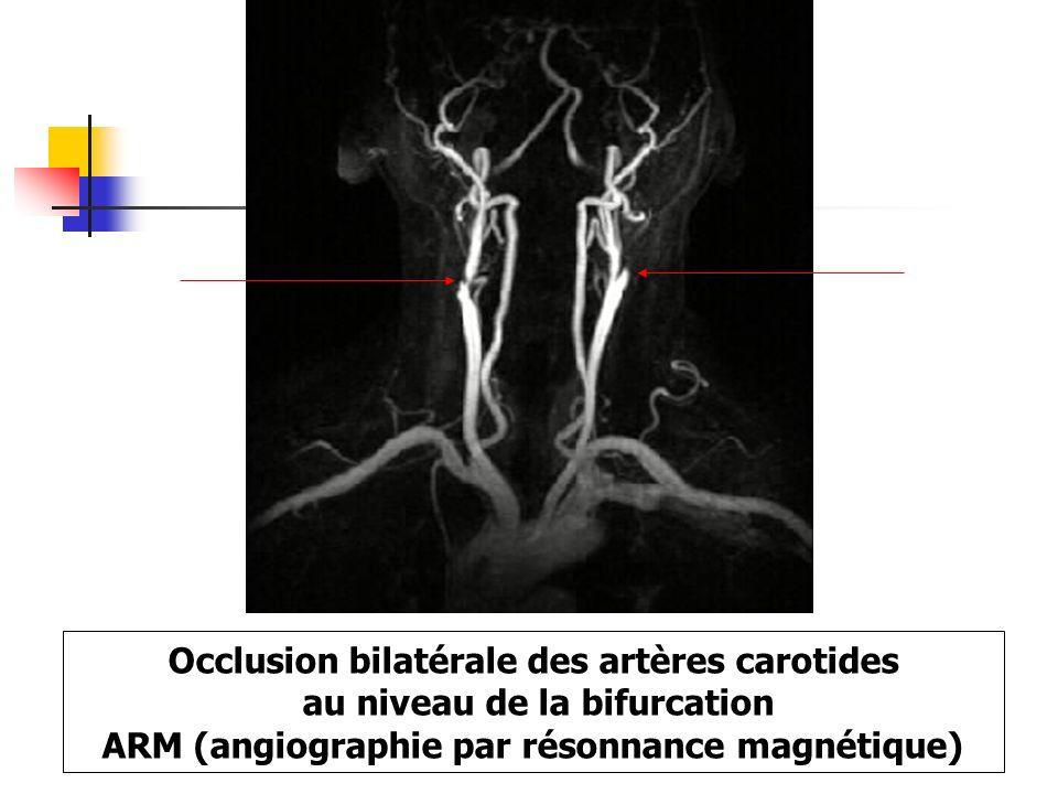 Occlusion bilatérale des artères carotides au niveau de la bifurcation