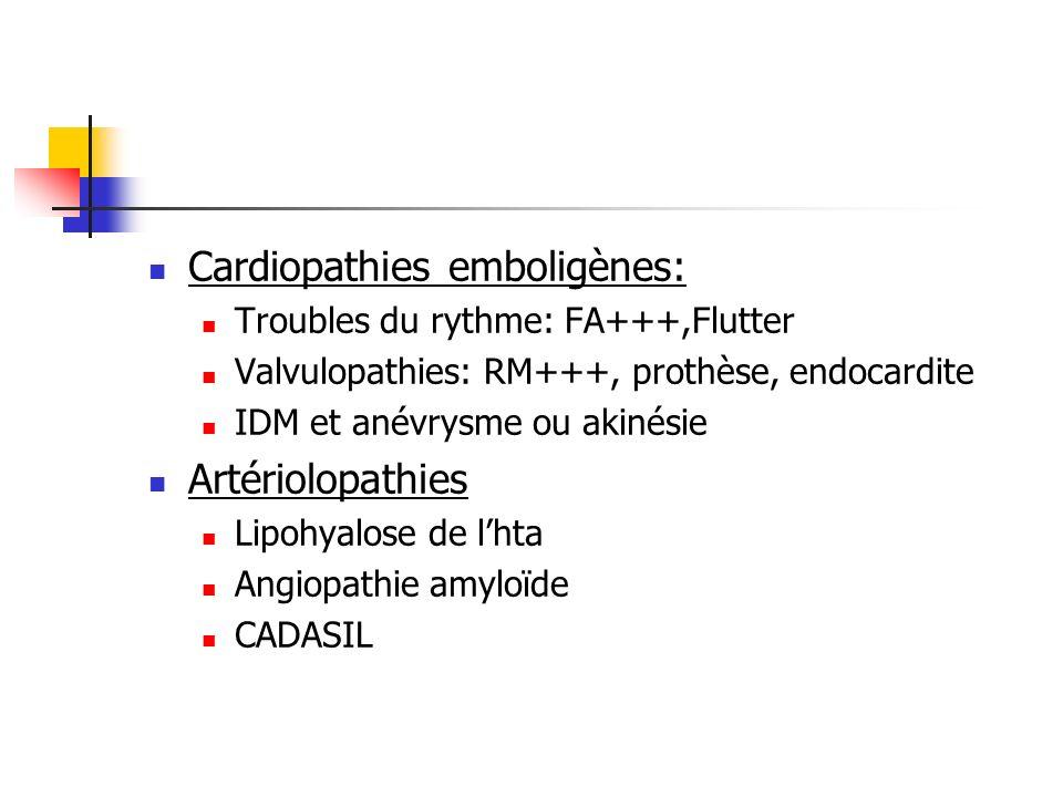 Cardiopathies emboligènes: