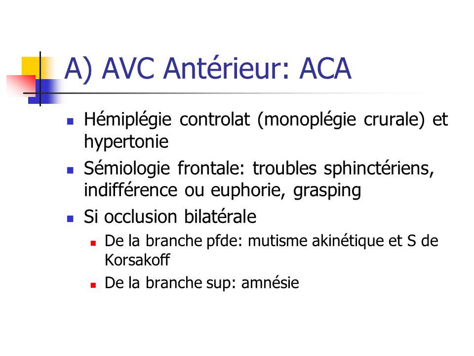 A) AVC Antérieur: ACA Hémiplégie controlat (monoplégie crurale) et hypertonie.