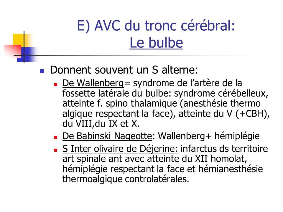 E) AVC du tronc cérébral: Le bulbe