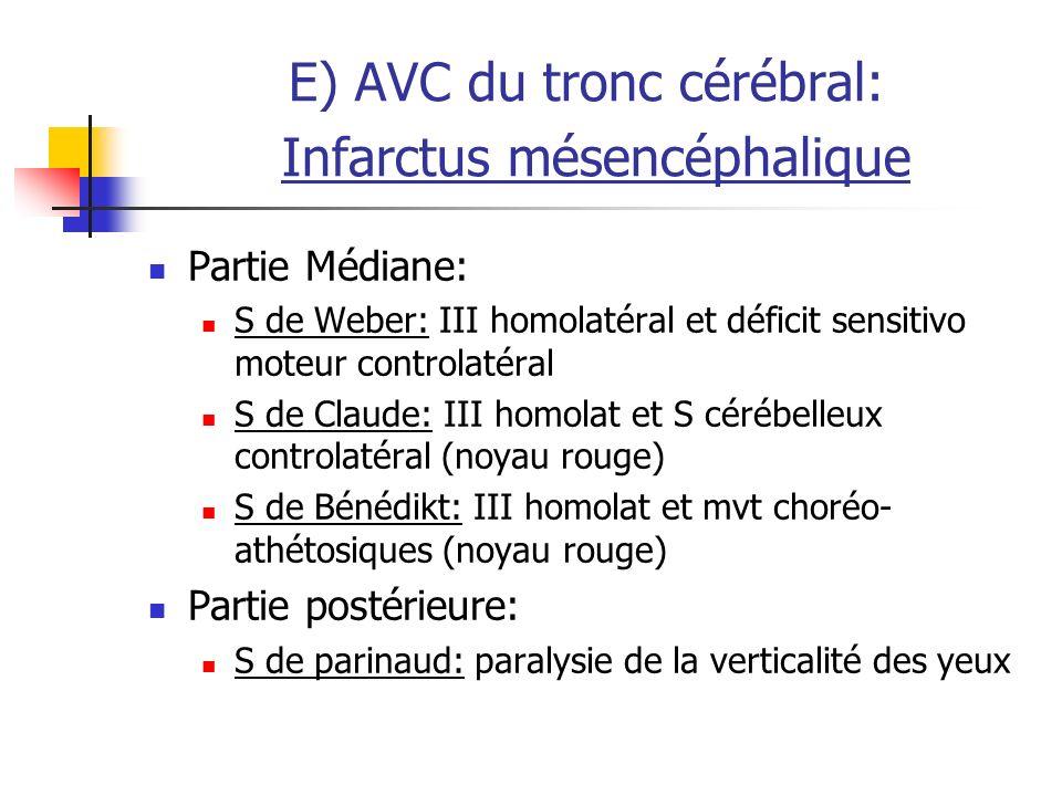 E) AVC du tronc cérébral: Infarctus mésencéphalique