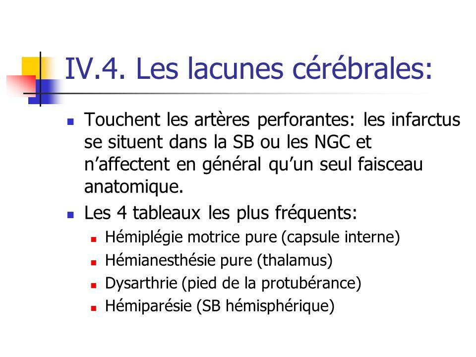 IV.4. Les lacunes cérébrales: