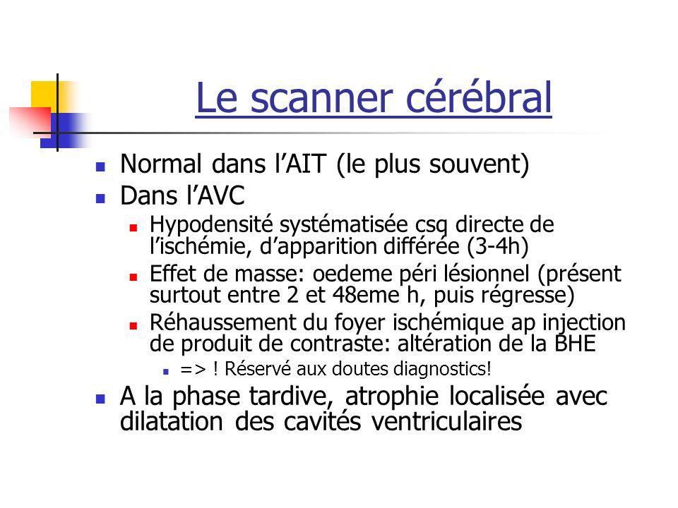 Le scanner cérébral Normal dans l'AIT (le plus souvent) Dans l'AVC