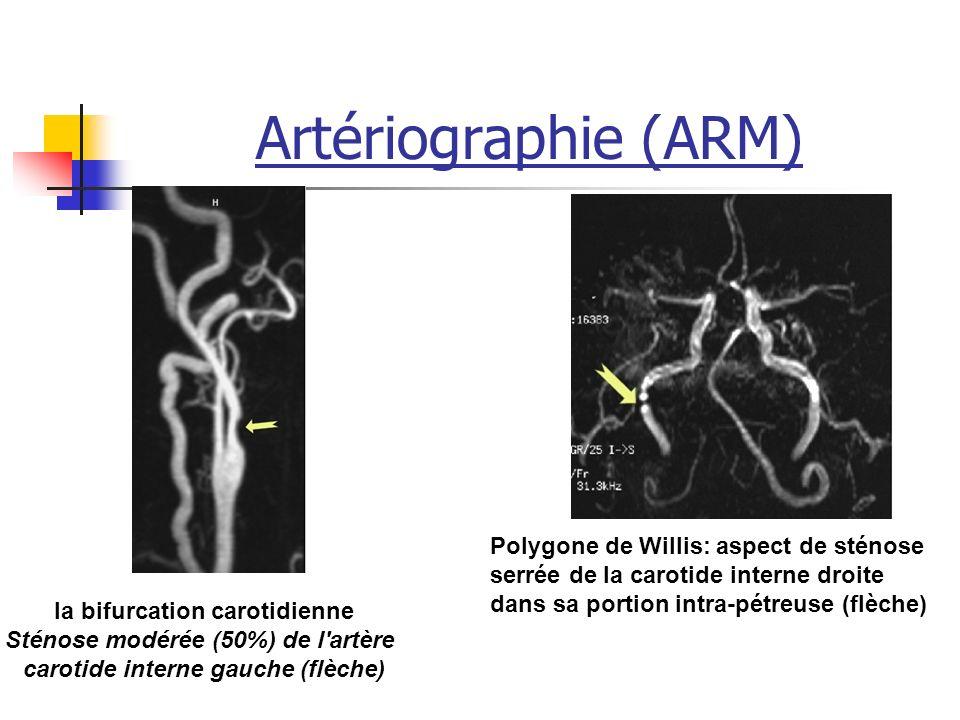 Artériographie (ARM) Polygone de Willis: aspect de sténose