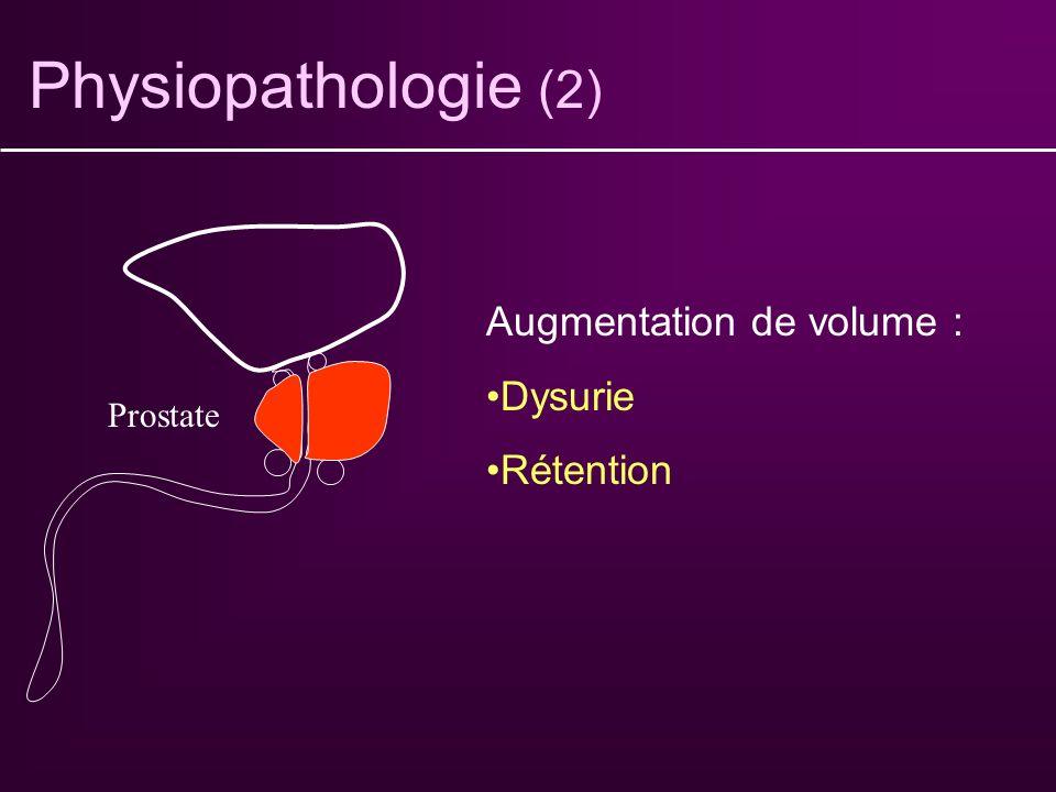 Physiopathologie (2) Augmentation de volume : Dysurie Rétention