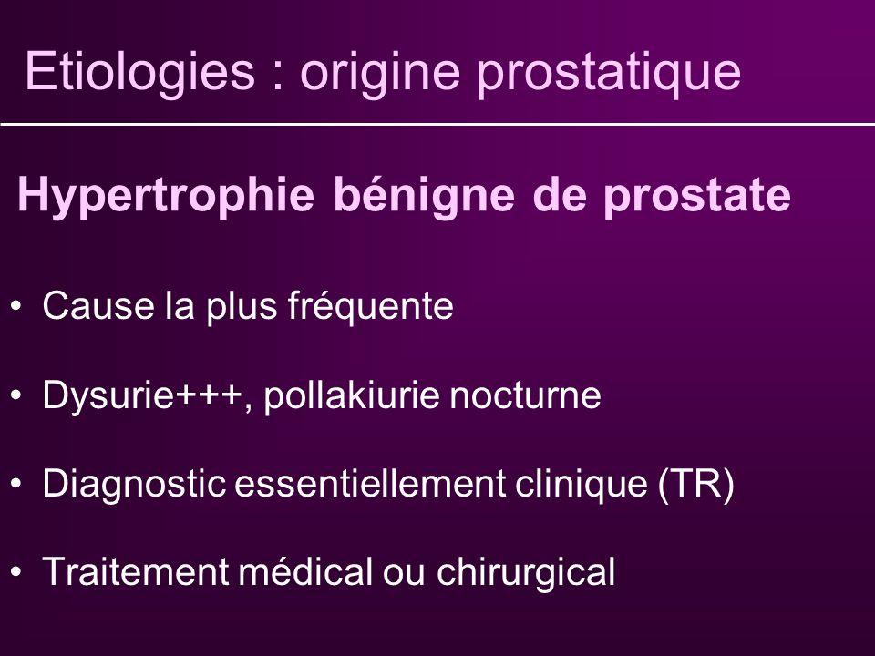 Etiologies : origine prostatique
