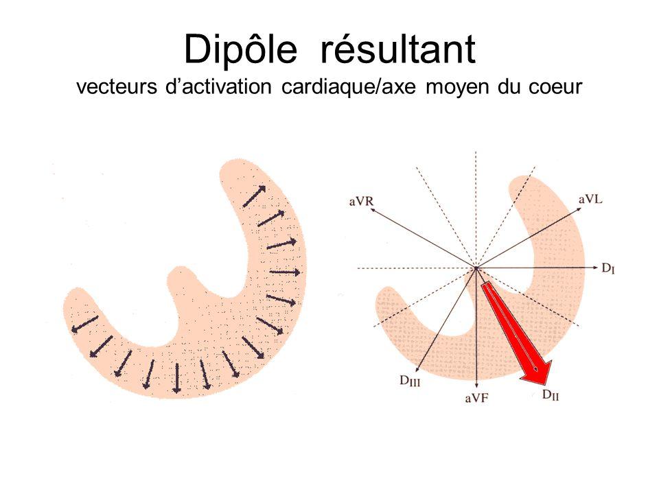 Dipôle résultant vecteurs d'activation cardiaque/axe moyen du coeur