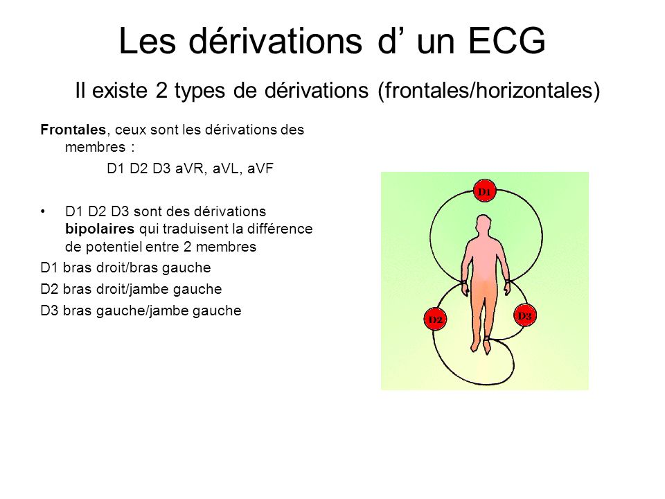 Les dérivations d' un ECG Il existe 2 types de dérivations (frontales/horizontales)