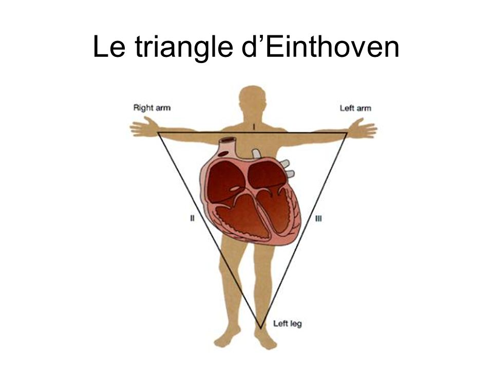 Le triangle d'Einthoven