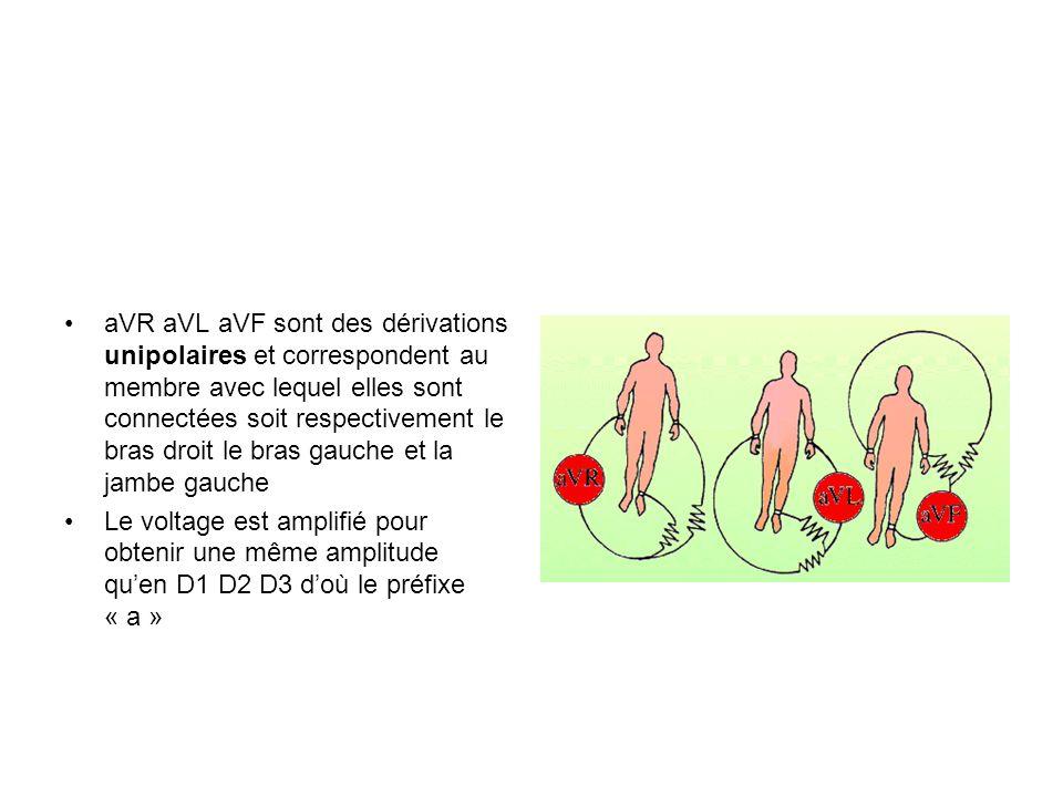 aVR aVL aVF sont des dérivations unipolaires et correspondent au membre avec lequel elles sont connectées soit respectivement le bras droit le bras gauche et la jambe gauche