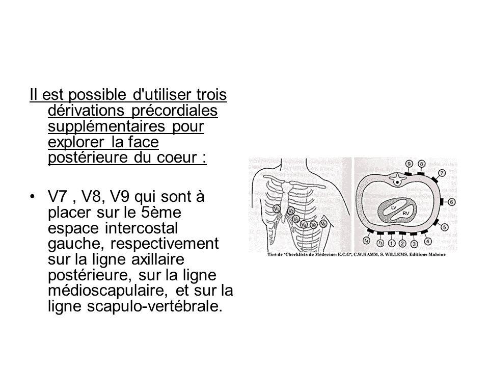 Il est possible d utiliser trois dérivations précordiales supplémentaires pour explorer la face postérieure du coeur :