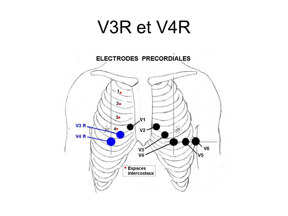 V3R et V4R