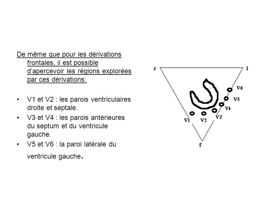 De même que pour les dérivations frontales, il est possible d'apercevoir les régions explorées par ces dérivations: