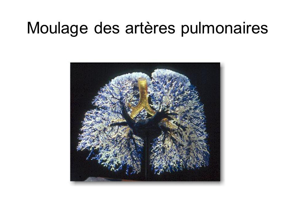 Moulage des artères pulmonaires