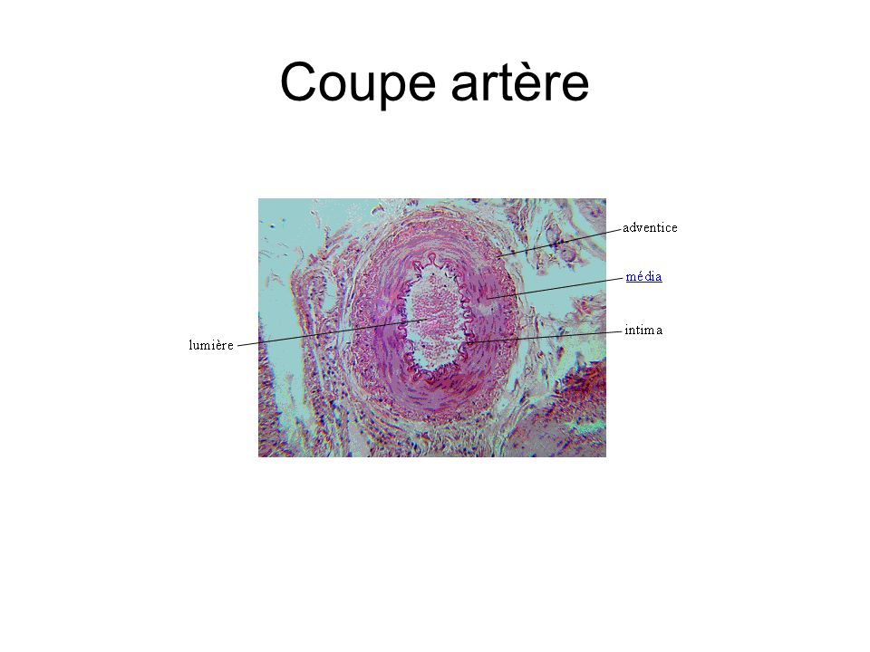 Coupe artère